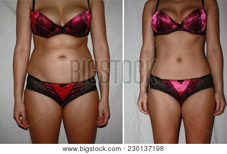 Authentic Real Amateurish Before And After Weight Loss Photo Of Female Body.