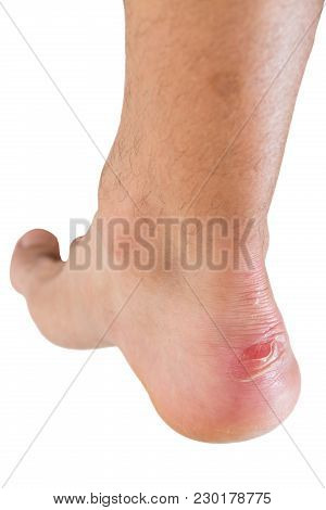 Closeup Of Ankle Of Male Man Injured, His New Shoes Rubbed