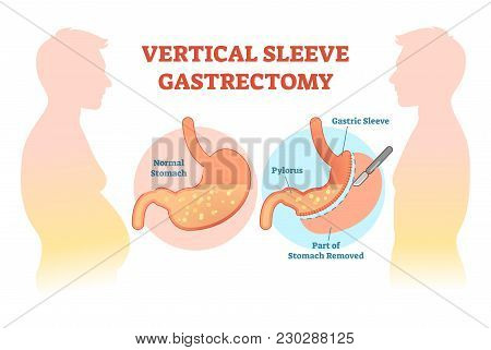 Vertical Sleeve Gastrectomy Medical Vector Illustration Diagram With Stomach Surgical Cut. Anatomica