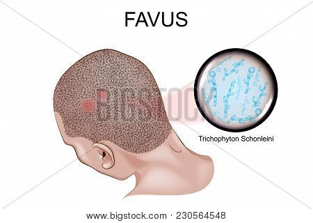 Vector Illustration Of The Favus. Fungal Infection Of The Skin