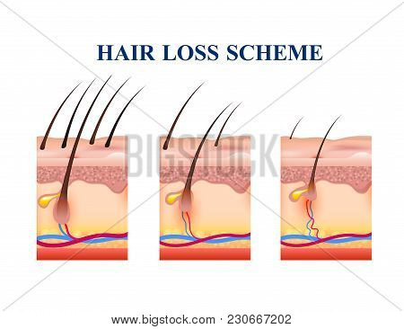 Stages Of Hair Loss On Human Skin, Scheme With Anatomy Structure Including Follicles, Veins, Nerves,