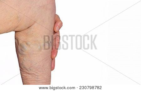 The Old Age And Sick Of A Woman. Varicose Veins On A Legs Of Old Woman Isolated On White. The Varico