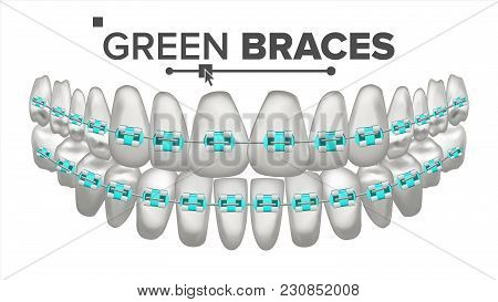 Green Child Braces Vector. Tooth And Dental Braces. Human Jaw. 3d Isolated Illustration