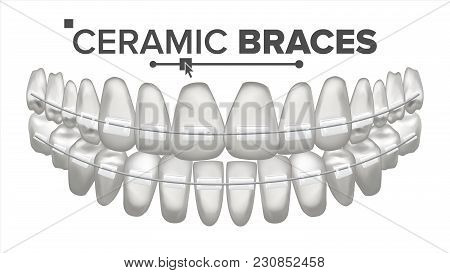 Ceramic Braces Vector. Human Jaw. Dentist, Orthodontist Poster Element. Isolated Illustration