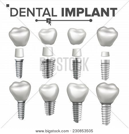 Dental Implant Set Vector. Implant Structure. Crown, Abutment, Screw. Care Stomatology Realistic Iso