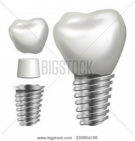 Dental Implant Vector. Medical Poster, Banner Design Element. Stomatology Dentist Advertisement. Rea