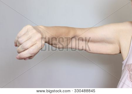 An Excess Loose Skin On An Arm Of A Senior Elderly Woman After Extreme Weight Loss.