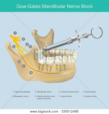 Mandibular Nerve Block. Illustration Reference To Dentist The Lower Jaw Area Aesthetic Just Injectio