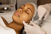 Aesthetic corrective treatments concept. Cosmetology. Facelift in spa salon. Beautician makes injections afro american girl in cheekbone. Smoothing of mimic wrinkles. Filler injections. poster