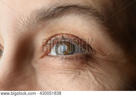 Closeup View Of Mature Woman With Cataract