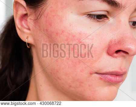 Papulopustular Rosacea, Close-up Of The Patient's Cheek - The Consequences Of Prolonged Wearing Of A