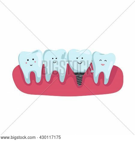 Dentition On The Gum. Teeth With Dental Implant Cartoon In Flat Design. Tooth Implant Screw In Gum.
