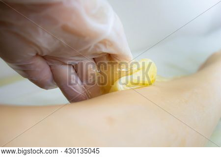Applying Sugar Paste To Remove Hair. The Process Of Removing Hair From The Legs. The Sugaring Master
