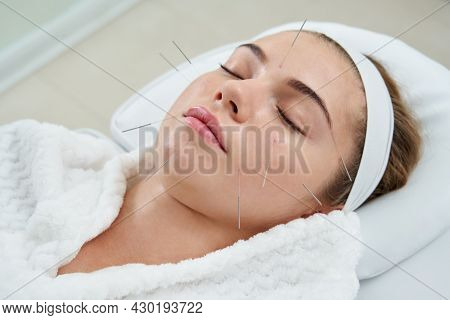 Young Woman Having An Acupuncture Treatment Therapy On Her Face In Spa Salon. Alternative Medicine A