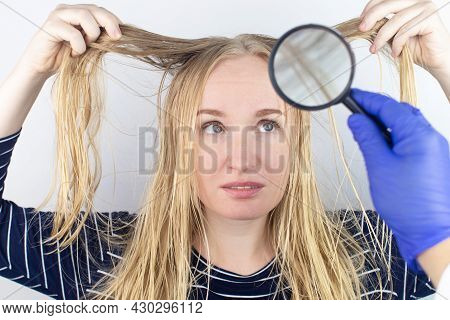 The Girl Looks In Front Of The Magnifier At Her Oily Hair. Problematic Scalp And Increased Secretion