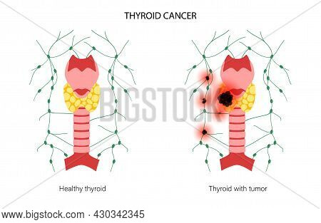Thyroid Cancer Stages Anatomical Poster. Inflammation And Pain In Thyroid Gland And Healthy Trachea.