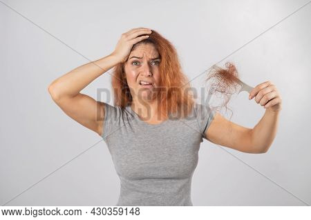 Caucasian Woman With A Grimace Of Horror Holds A Comb With A Bun Of Hair. Hair Loss And Female Alope