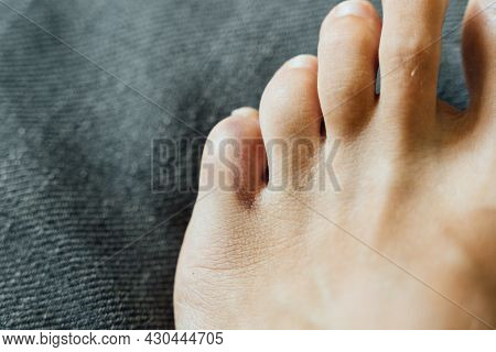 Foot Little Finger Injury. Little Toe Pain And Bruise After Home Accident. Phalange Fracture. Barefo
