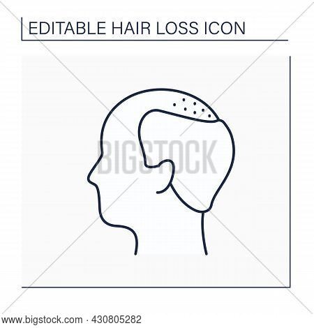 Hair Loss Line Icon. Man Loses Hair. Male Pattern Baldness. Large Bald Area On Frontal And Central S