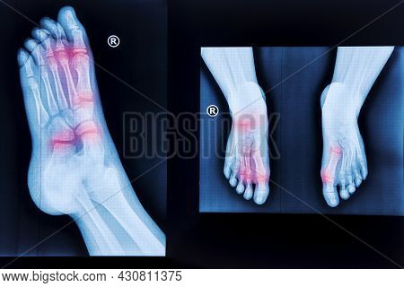 X-ray Of Human Feet. Normal Radiography Of The Foot, Medical Diagnostics, Traumatology And Orthopedi