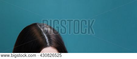 Gray Hair And Dyed Hair On A Female Head On A Blue Background. Early Graying Concept Banner Format