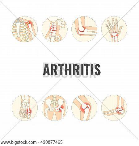 Vector Illustration On The Theme World Arthritis Day