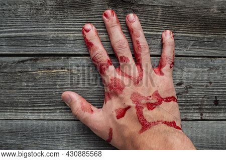 A Bloody Man's Hand On The Background Of A Gray Wooden Table. The Concept Of Injury Trauma At Work.