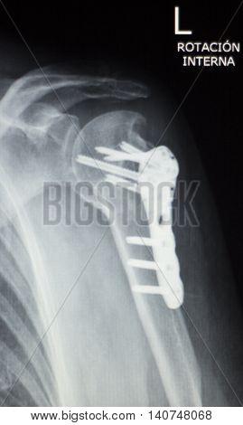 Shoulder Orthopedics Implant Xray