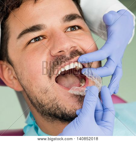 Placing Invisible Braces