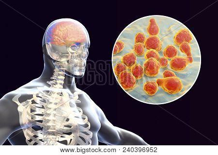 Cryptococcal Meningitis, 3d Illustration. Pathogenic Yeast Fungus Cryptococcus Neoformans Causes Men