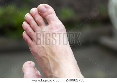 Close-up of isolated pair of woman's clean white dry feet with unpolished nails resting on blurred gray- green background. Healthcare, cosmetic and hygiene concept. poster