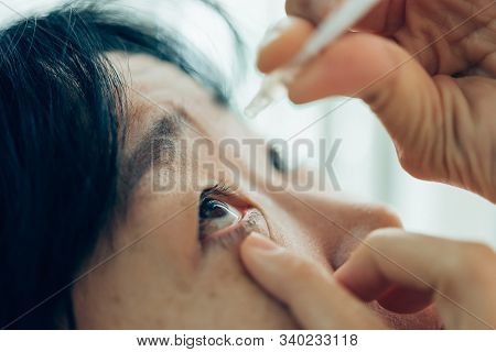 Woman Use Eye Drop, Artificial Tears To The Eye