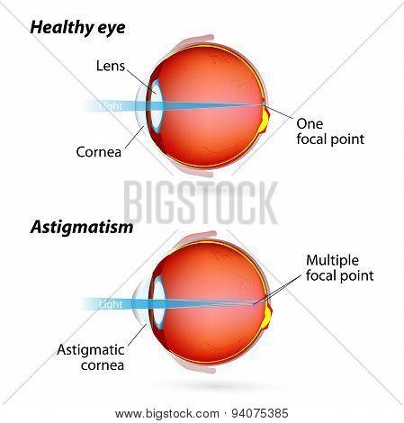 Astigmatism