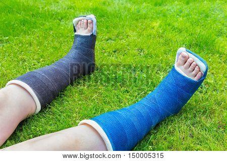 Two gypsum legs of child on grass
