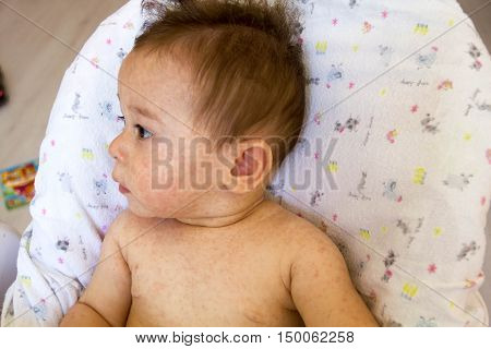 Baby With Dermatitis Problem Of Rash. Allergy Suffering From Food Allergies. Close-up Atopic Symptom