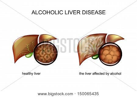 illustration of a healthy liver and alcoholic liver disease
