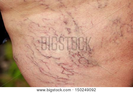 the disease varicose veins on a legs poster