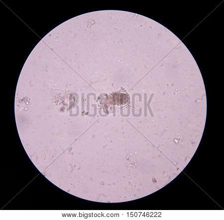 Egg parasite in stool exam real sample.