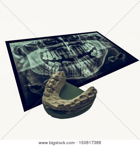 Vintage Looking Xray Of Teeth With Positive Teeth Cast