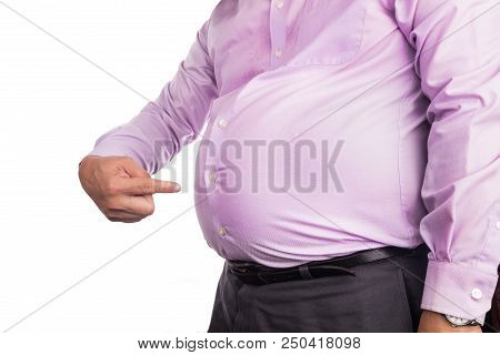 Man Pointing Own Unhealthy Big Belly With Visceral Subcutaneous Fats