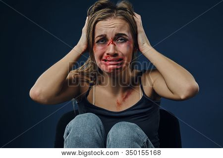 Scared Woman, Bleeding Face Covered With Bruises, In Black T-shirt And Jeans, Grabbed Own Head And C