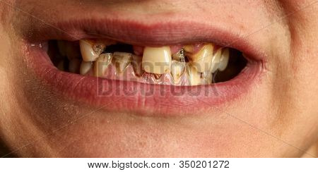 Open Mouth With Broken, Diseased Teeth Affected By Caries And Periodontitis. Steel Pin In The Gum Fo