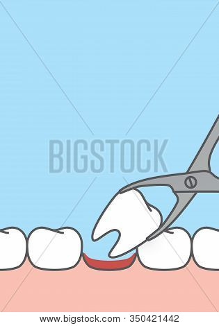 Blank Banner Tooth Extraction,tooth Removal By Forceps Illustration Vector Design On Blue Background