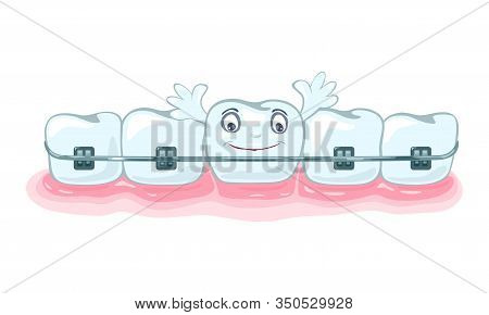 Using Of Metallic Dental Braces, Orthodontic Brackets To Correct Occlusion, Alignment Of Dentition.