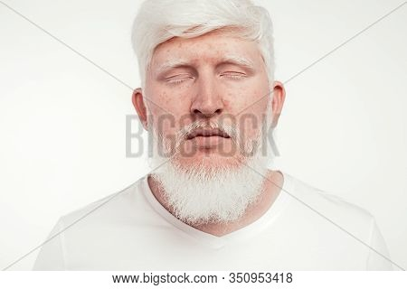 Calm Bearded Albino Male With Freckles And Closed Eyes Resting Against White Background