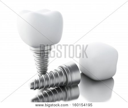 3D Illustration. Dental tooth implant. Dental care concept. Isolated white background.
