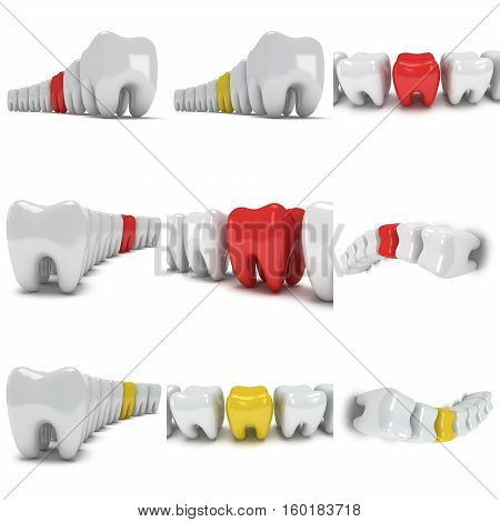 Aching tooth in row of healthy teeth isolated on white background. 3D render. Dental, medicine, health, out of crowd concept.