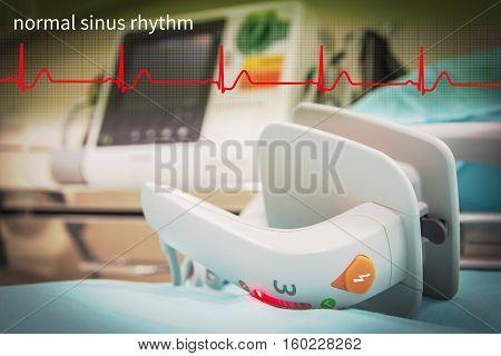 EKG or ECG monitor in emergency room and normal sinus rhythm wave