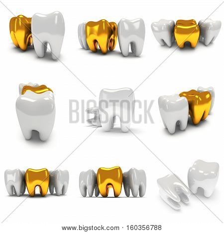 Gold and healthy teeth isolated on white background. 3D render set. Dental, medicine, health, out of crowd concept.