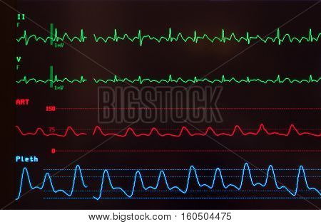 Close up of a medical monitor with a black background with green electrocardiogram waves showing th heart rhythm disturbance of atrial flutter, the red line of an arterial blood pressure and the blue line of the oxygen saturation level, plethsmography.